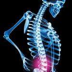 Self-Help Tips for Avoiding Back Pain