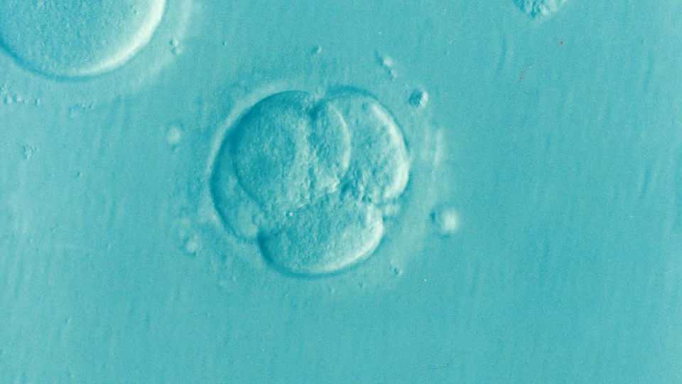 Infertility and the Cost of Donor Eggs in the US