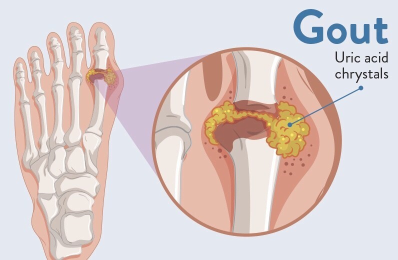 Suffering from Gout