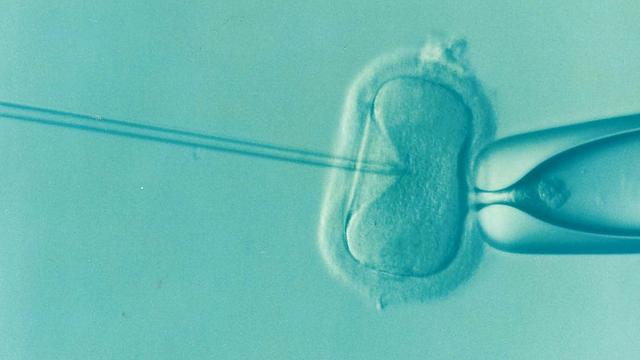 Fertility and Fertilization with Invitro