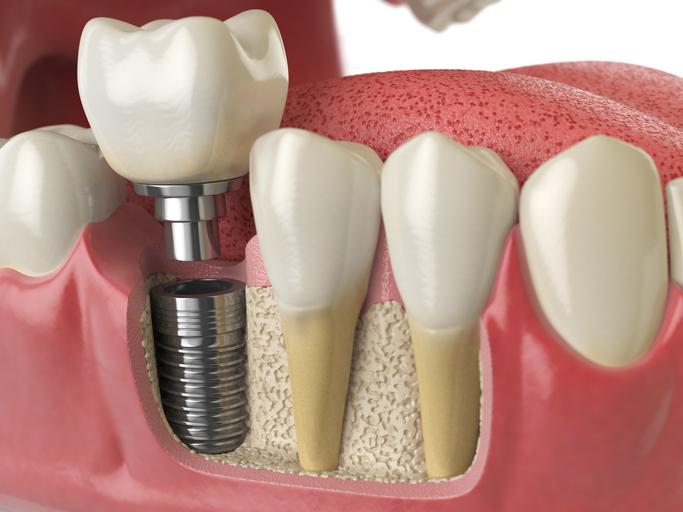 False Teeth or Dental Implants
