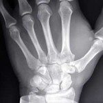 An Orthopedic Doctor is a Bone Specialist for Orthopedic Surgery