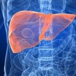 Liver Cancer a Liver Disease That Requires a Liver Transplant?