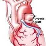 What is Coronary Artery Bypass Graft – CABG