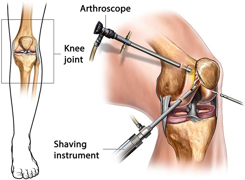 How Arthroscopy Surgery Reduces Health Care Costs