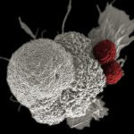 Understanding Immunotherapy and how it helps fight cancer