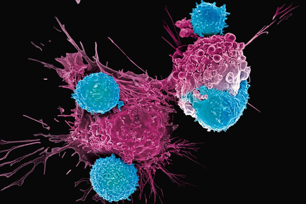 Immunotherapy Uses Your Own Immune System to Help Fight Cancer