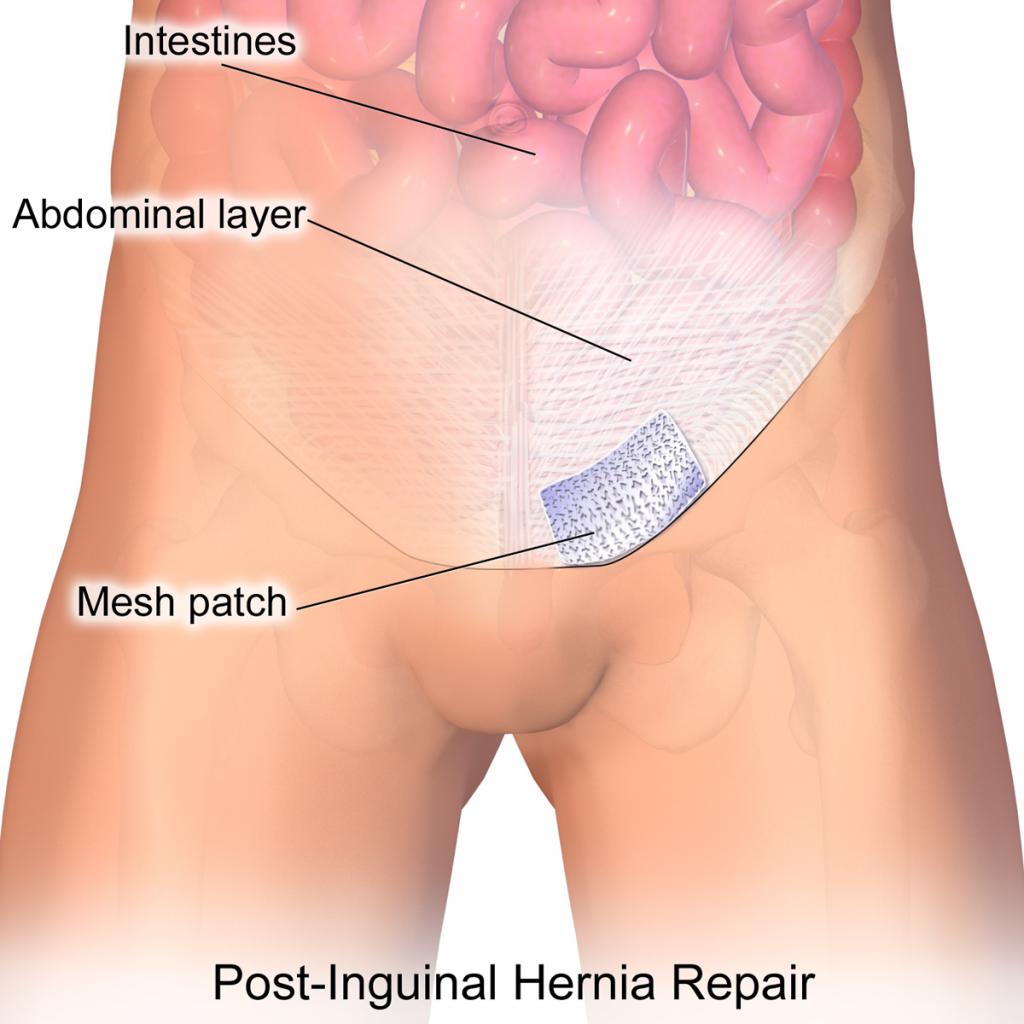 Hernia Repair and Types of Hernia Repair Surgery