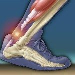 What is a Tendon Rupture or Torn Tendon?
