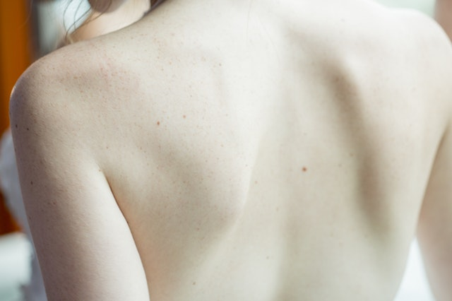 What Causes Skin Cancer and How Do I Know its Cancer?