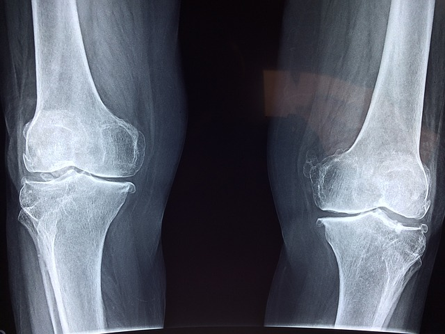 What Happens During Total Knee Replacement